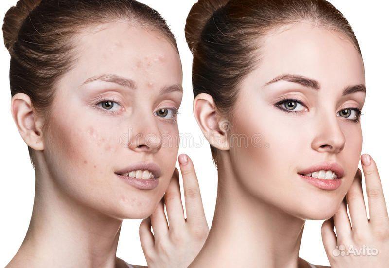 Косметическая чистка лица купить на Вуёк.ру - фотография № 2